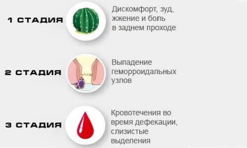 Не всегда геморрой начинается с кровотечения, у некоторых на начальных этапах возникают дискомфорт, зуд, чувство жжения
