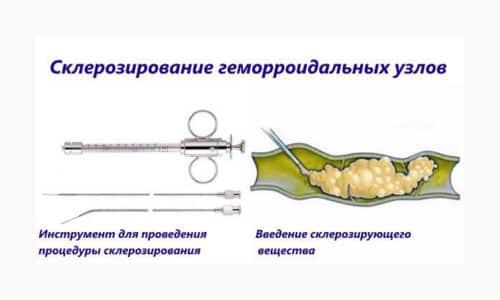 Принцип склеротерапии геморроидального узла - это не удаление, а уменьшение его в размерах