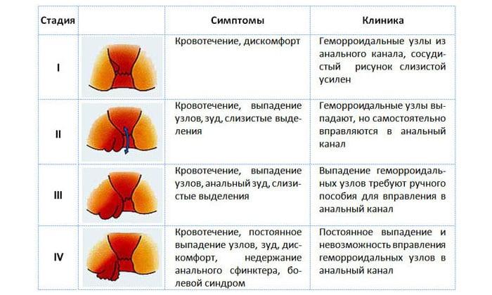 Геморрой характеризуется следующими дополнительными проявлениями: Возникновение болей на протяжении всей прямой кишки, наличие примесей крови