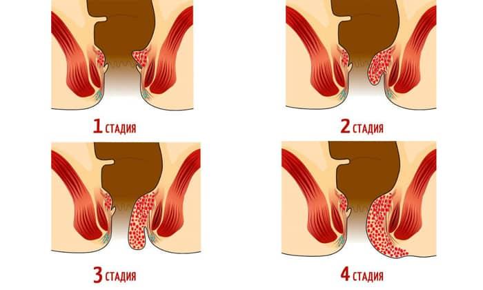 Запущенный геморрой на 3 и 4 стадиях развития
