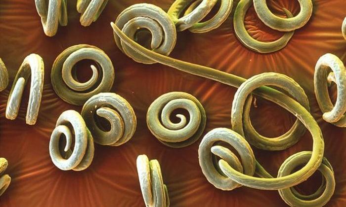 Кроме внутреннего и комбинированного геморроя, причинами изменения формы кала могут стать скопления паразитов