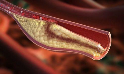 Имбирь обладает способностью улучшать кровообращение и предотвращать образование тромбов