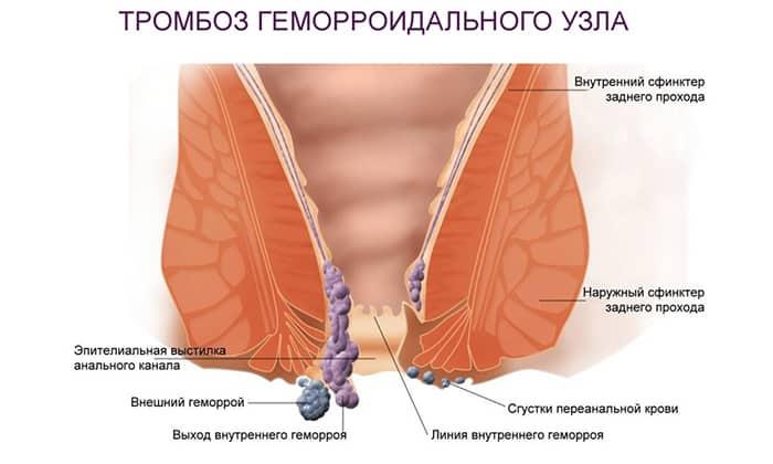 Геморроидальный тромбоз (скопление крови в геморроидальных венах с образованием сгустков)