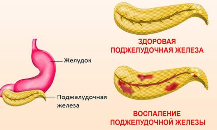 Запрещено применять консервированные маслины и оливки при воспалениях в желудке, поджелудочной и желчном пузыре