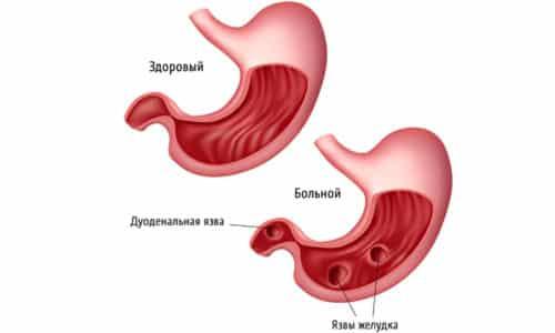 Использование овоща и блюд из него в пищу противопоказано при язве желудка