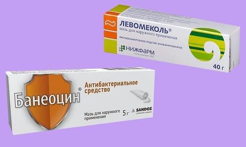 Для предупреждения и лечения гнойных осложнений травм назначаются антибактериальные и заживляющие мази Банеоцин или Левомеколь
