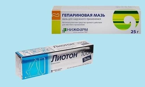 Нередко для лечения варикозного расширения вен врачи назначают Лиотон или Гепариновую мазь